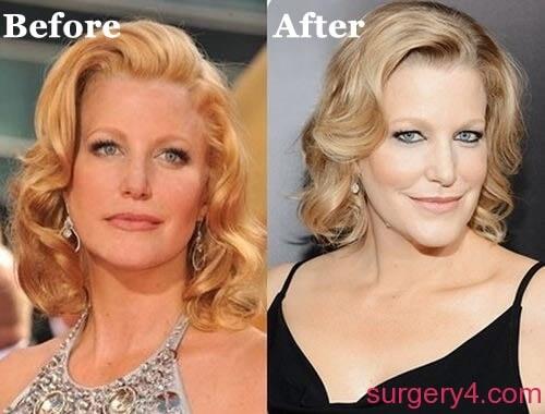 Anna Gunn Plastic Surgery Photos Before Amp After ⋆ Surgery4