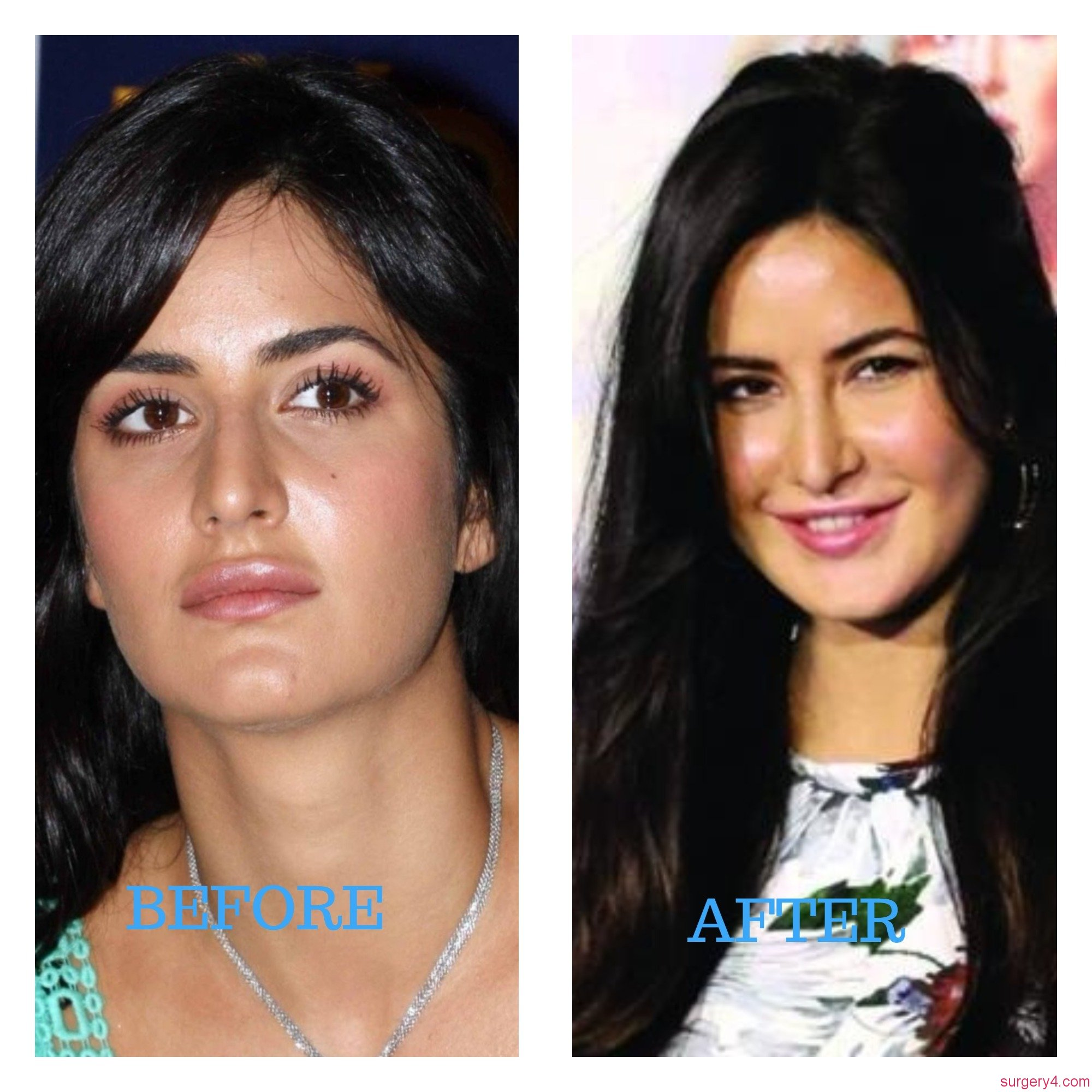 Katrina Kaif Before And After Nose Amie Yancey Pla...