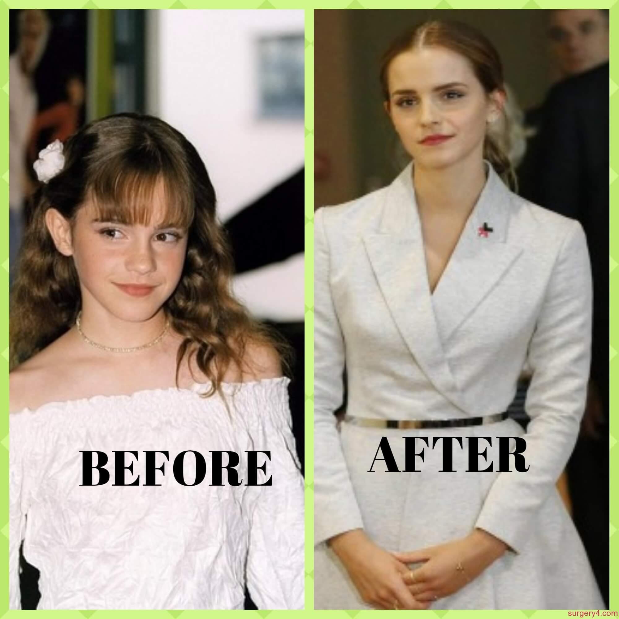 Emma Watson Nose Job Emma Watson Pla...