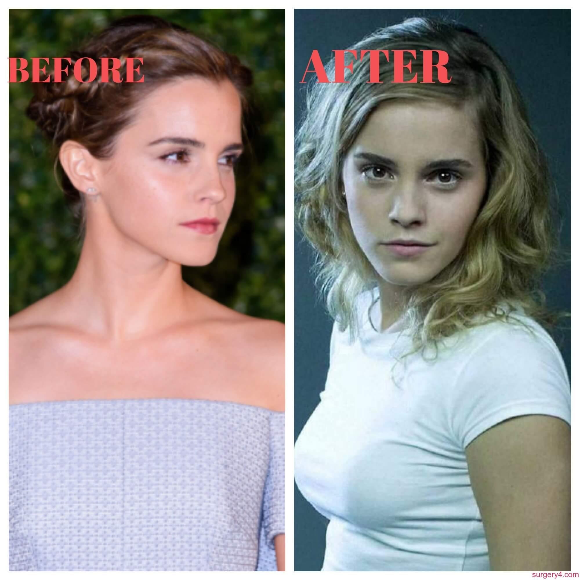 Emma watson breast