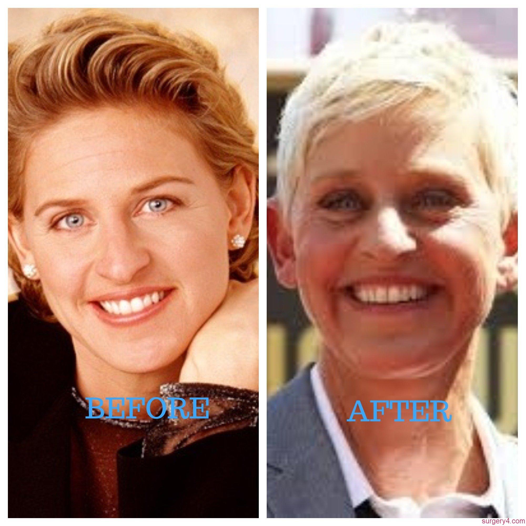 Portia De Rossi Plastic Surgery: Ellen DeGeneres Plastic Surgery Photos [Before & After